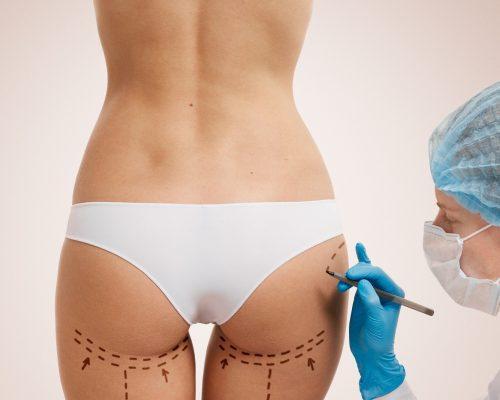 Chirurgie des fesses prix